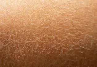 Larocheposay ArticlePage Sensitive Dehydrated skin